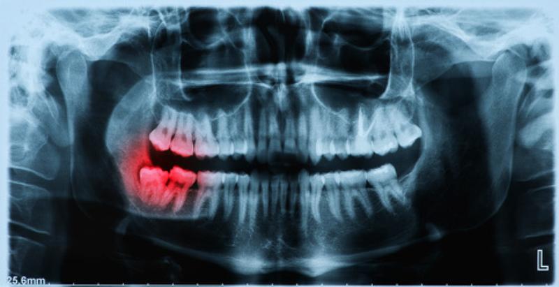 IAEA cảnh báo phơi nhiễm phóng xạ khi chụp X-quang điều trị nha khoa
