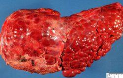 Cảnh báo gan ngày càng yếu ớt, suy nhược thông qua 4 biểu hiện nhỏ trên cơ thể