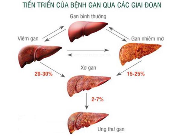 Đàn ông Việt Nam đứng thứ 3 thế giới về ung thư gan, bác sĩ chỉ cách phát hiện bệnh sớm