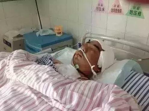 Người đàn ông tử vong sau khi phẫu thuật mở sọ
