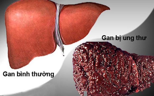 """Lưu ý triệu chứng """"2 ngứa 1 đen"""" trên cơ thể, báo hiệu ung thư gan đến gần"""